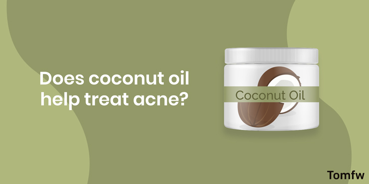 does coconut oil help treat acne?